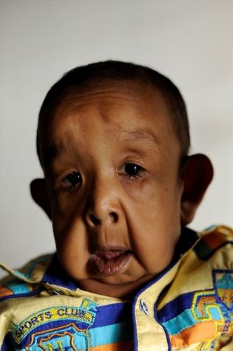 4 Yaşındaki Bayezid'in Hastalığı Yürek Burkuyor