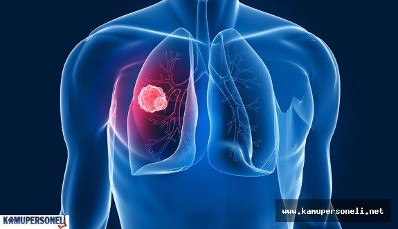 Akciğer Kanseri Nedir, Nasıl Tedavi Edilir?
