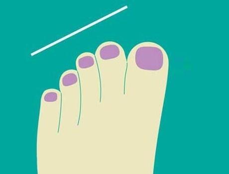 Ayak parmaklarından karakter analizi
