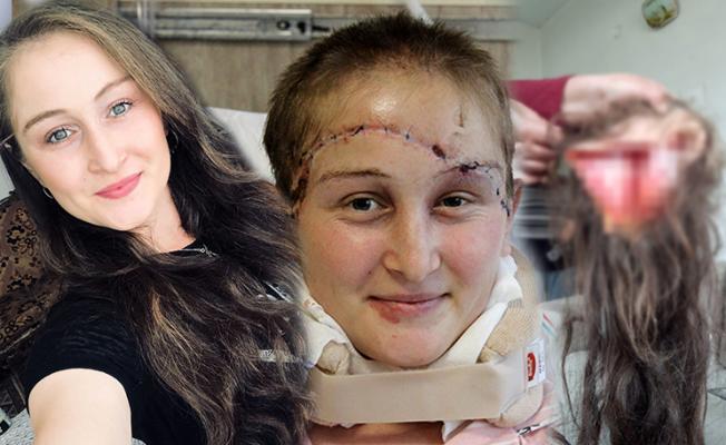 Pancar makinesine kafasını kaptıran genç kız mucize eseri kurtuldu