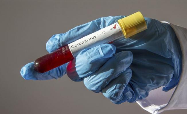 Bilim Kurulu'ndan flaş koronavirüs açıklaması! İkinci dalga gelirse..