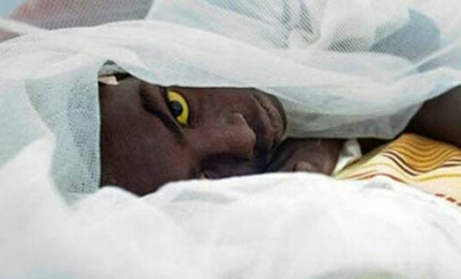 Corona Virüsü Devam Ederken Bir Salgın Daha: Enfekte Olanın Gözleri Sarı Oluyor