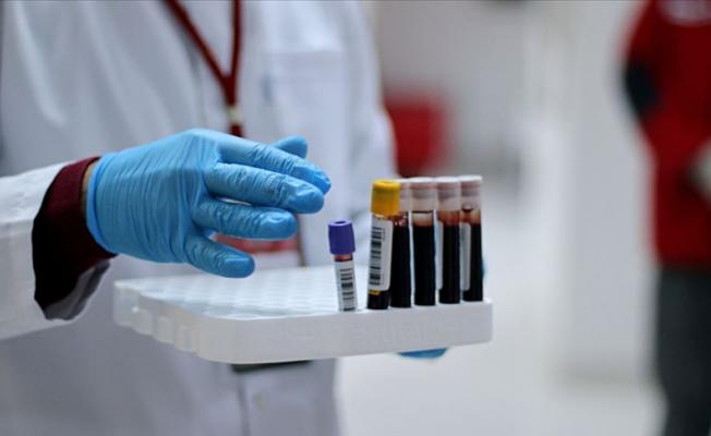 Covid-19 Hastasına Plazma Nakli Yapıldı: Yeni Test Sonucu Negatif Çıktı