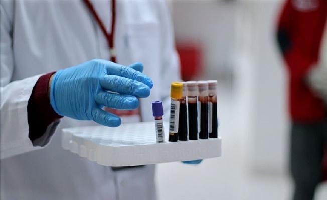 Dokuz Eylül Üniversitesi Duyurdu! Covid-19'a Karşı İmmun Plazma Tedavisi Başladı