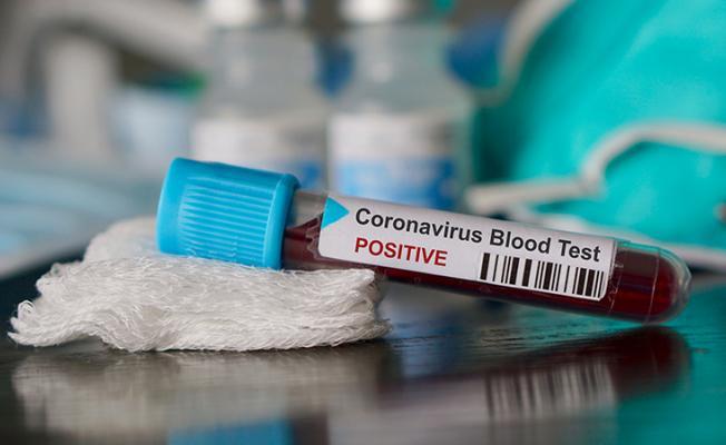 DSÖ'den Corona Virüsü İçin Türkiye Açıklaması: Artış Görülüyor