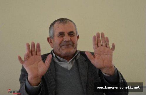 24 Parmağı Olan Ali İhsan Özdemir Görenleri Şaşırtıyor