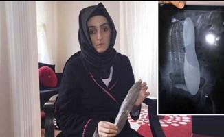 Hastanın Karnında 'ekartör' Unutan Doktor ve Hemşireye Hapis İstemi