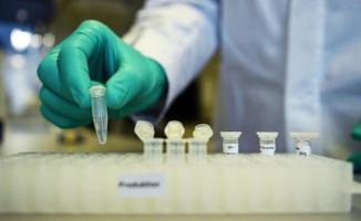 İlaç şirketi Covid-19 aşısı için tarih verdi: Sonbaharda kullanılabilir!