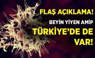 Şoke eden açıklama! Beyin yiyen amip, Türkiye'de de var!