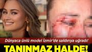 Dünyaca ünlü model Çeşme'de güvenlik görevlilerinin saldırısına uğradı! Tanınmaz hale geldi!